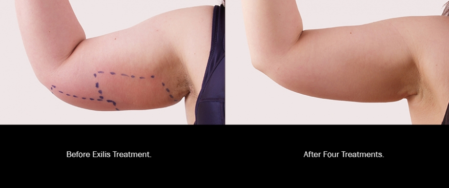 Before and After: Arms
