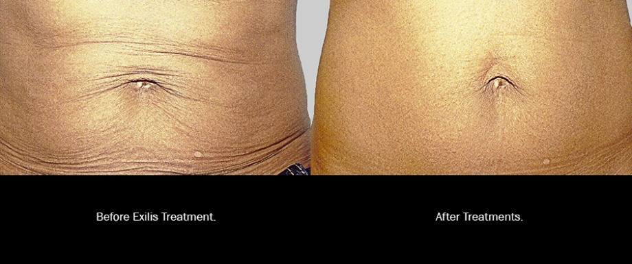 Belly: Before and After Exilis